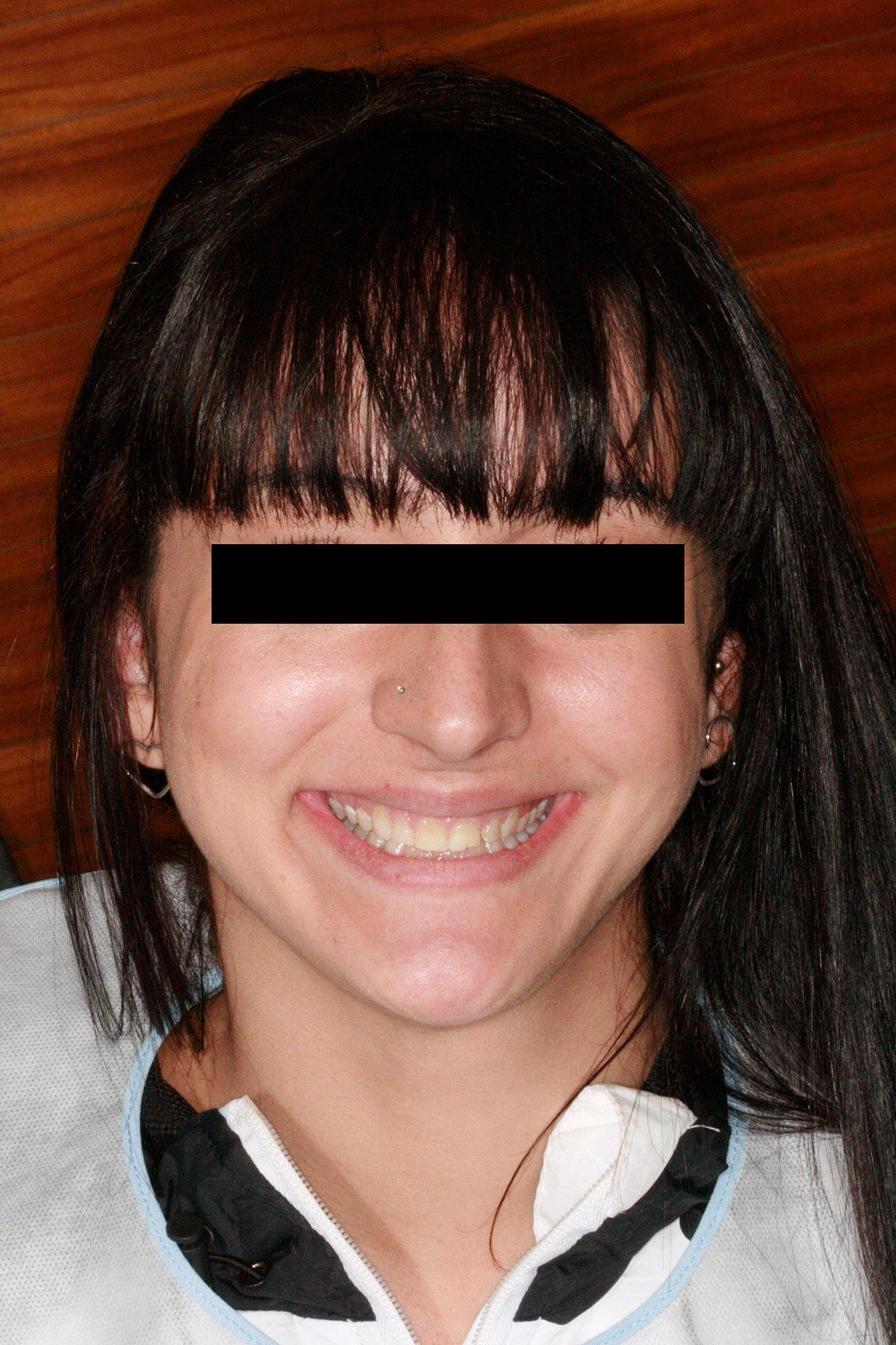 Fotos iniciais da paciente