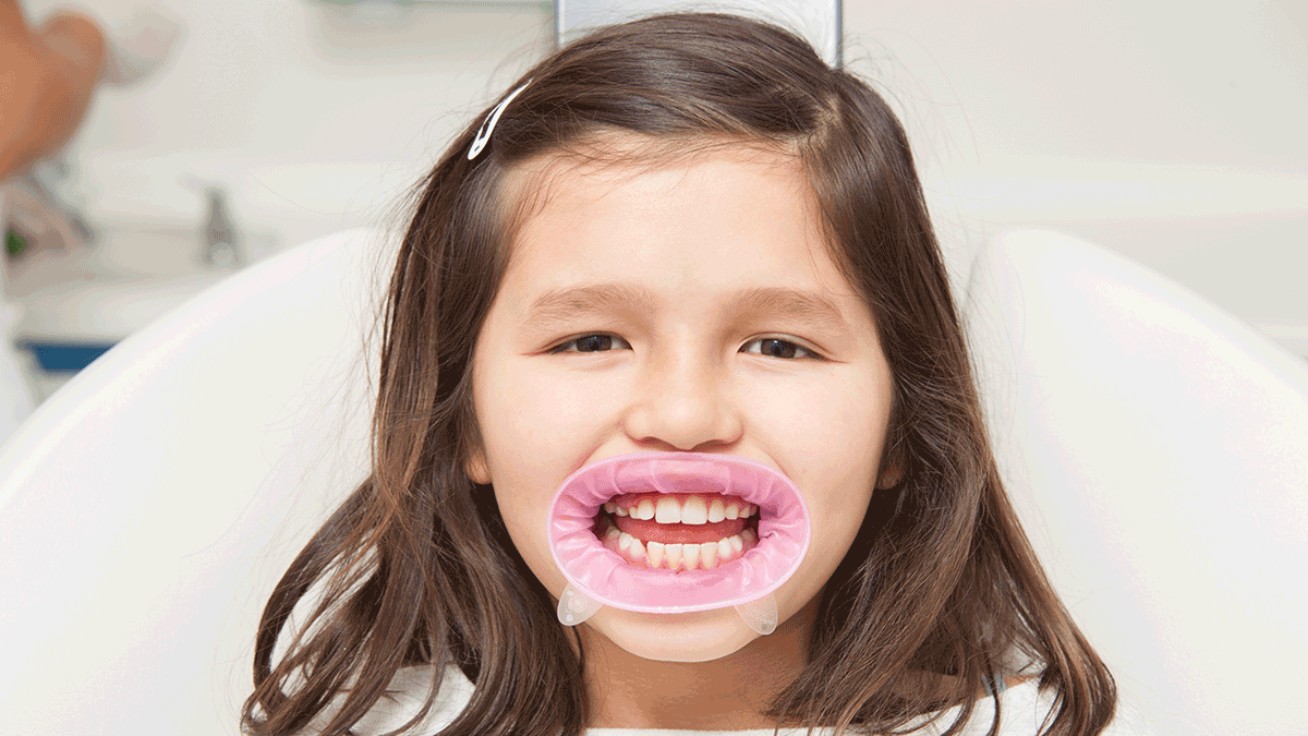 OptraGate. Did you know that effective retraction of lips and cheeks during dental procedures is considered to be one of the most important factors that influence the success of the treatment.