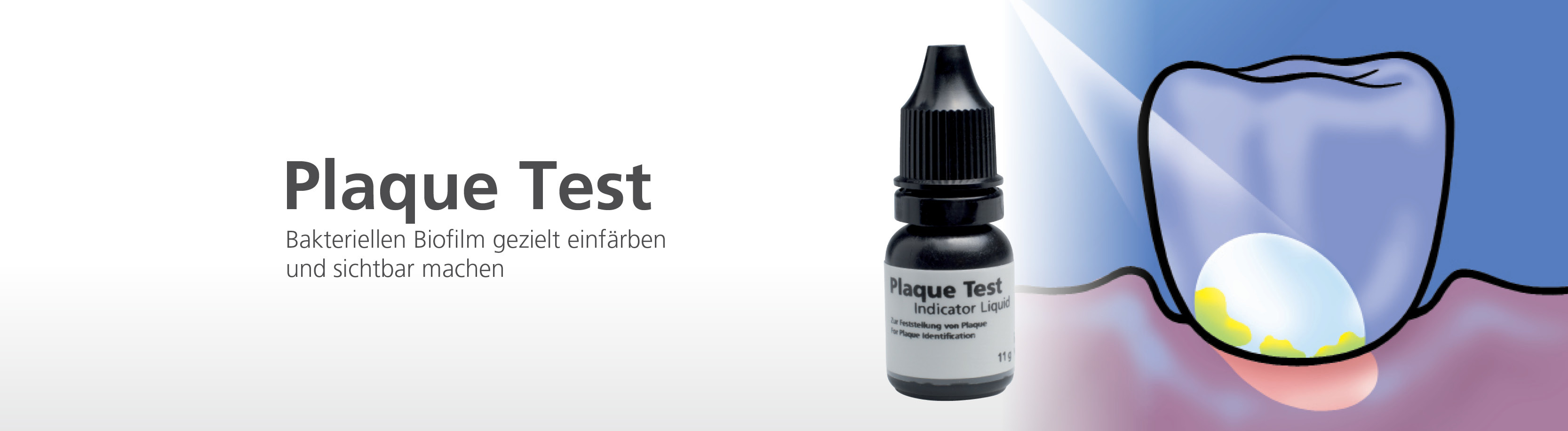 9515348295710_plaque-testde_plaque-test.jpg
