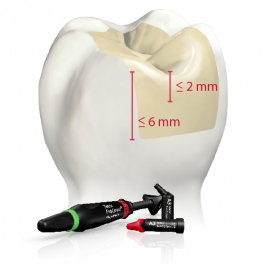 Predictable and Long-lasting Posterior Restorations