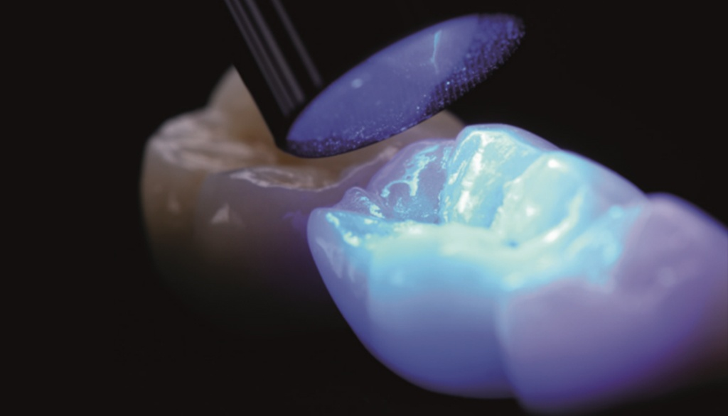 Related post - Cure More Effectively Through Ceramic Restorations