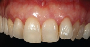 CAD/CAM Technologies: Providing Esthetic Restorations With Ease