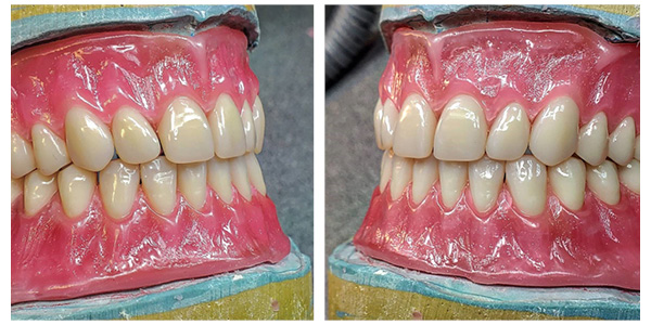 tooth banner_2