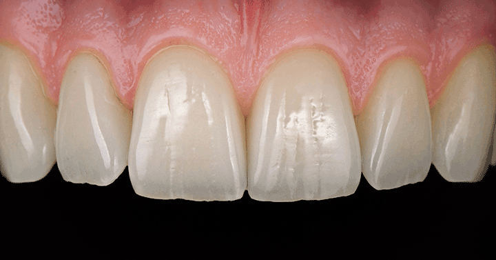 IPS e.max Press Multi is ideally suitable for the fabrication of monolithic anterior and posterior crowns, hybrid abutment crowns and veneers. Photo: Thorsten Michel