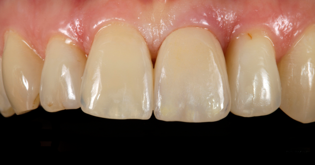 Tips from an expert: How to produce highly esthetic restorations by using the cut-back technique
