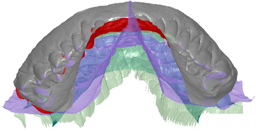 Digital dentistry: How virtual jaw measurements make prosthetics more efficient