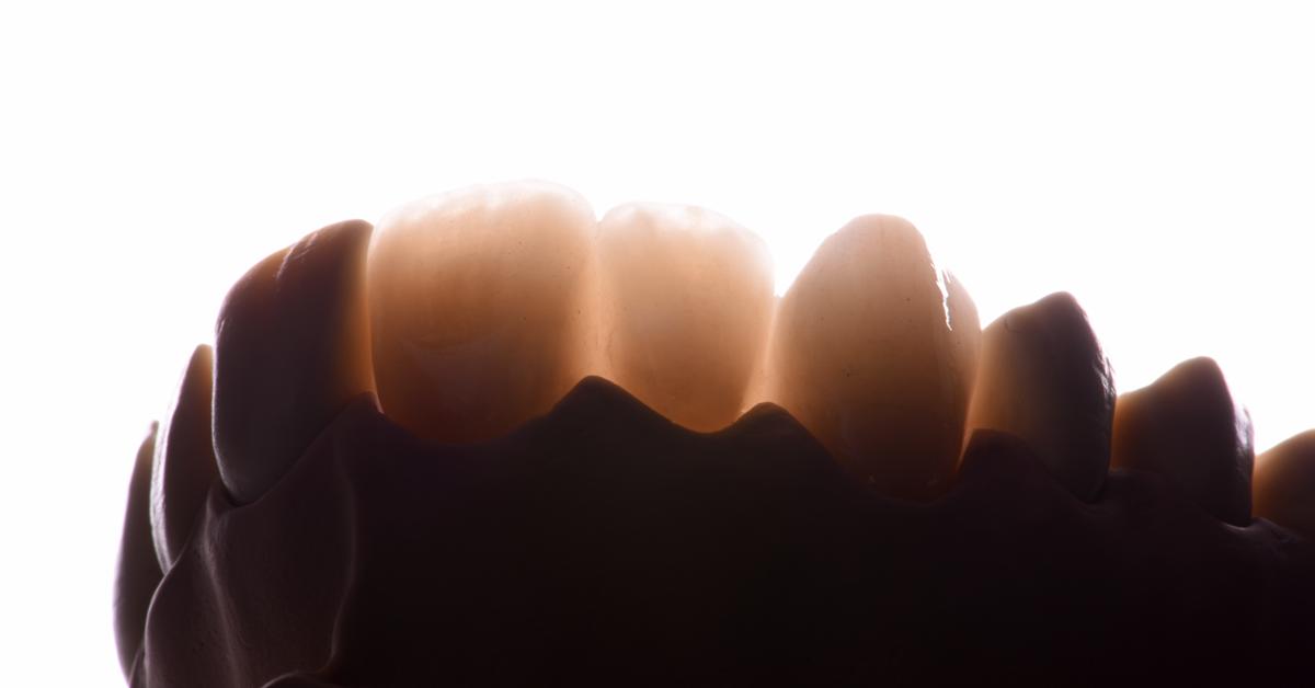 Bon à savoir : pourquoi la résistance à la propagation des fissures est si importante en ce qui concerne l'oxyde de ...