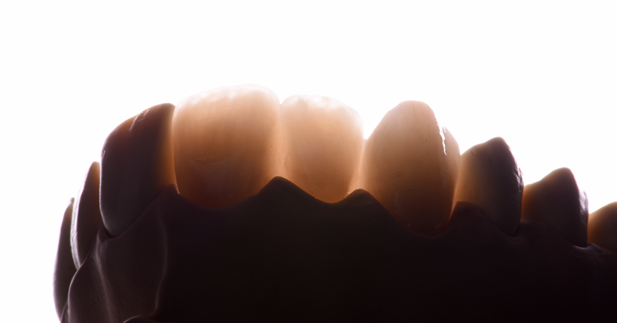 Popular post - Good to know: Why fracture toughness is so important in zirconium oxide and other ceramics