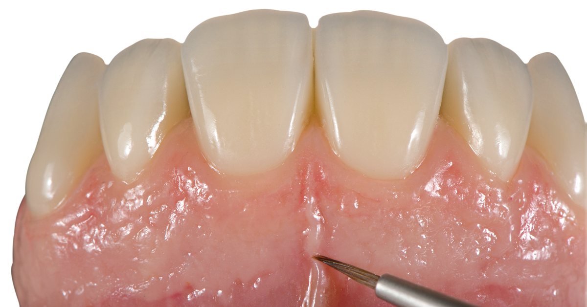 In view of the many dental restorations requiring additional areas with gingiva, pink esthetics – e.g. the lifelike design of the gingiva  – is becoming increasingly important.