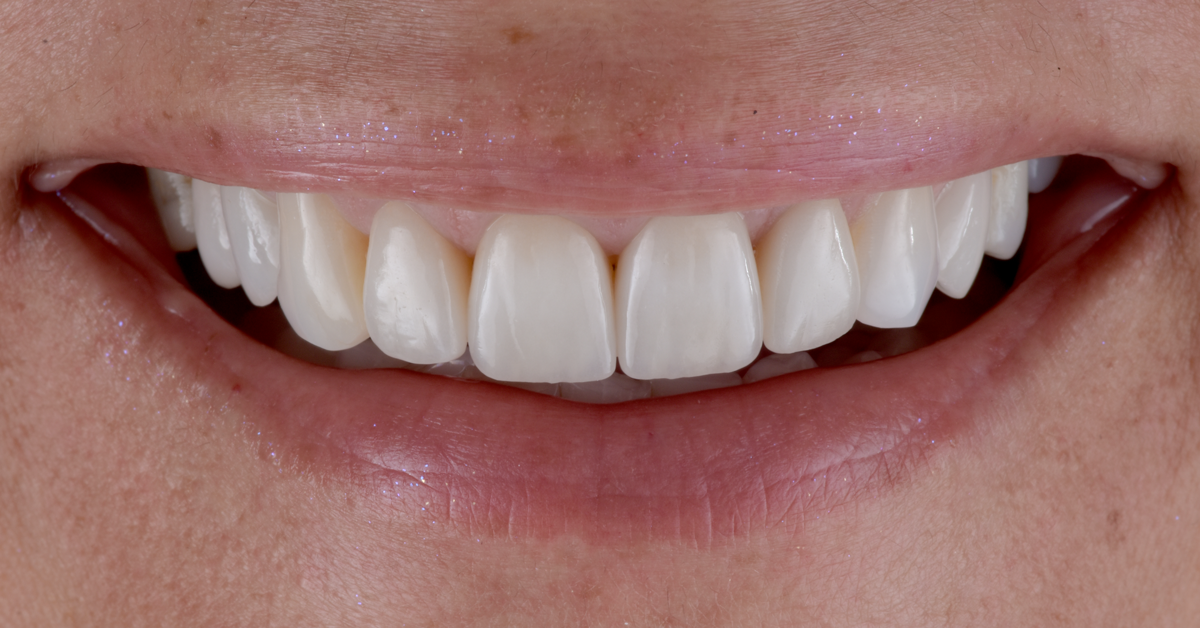 The task was to improve the smile of the patient in such a way that she would be a hundred per cent satisfied with the outcome.