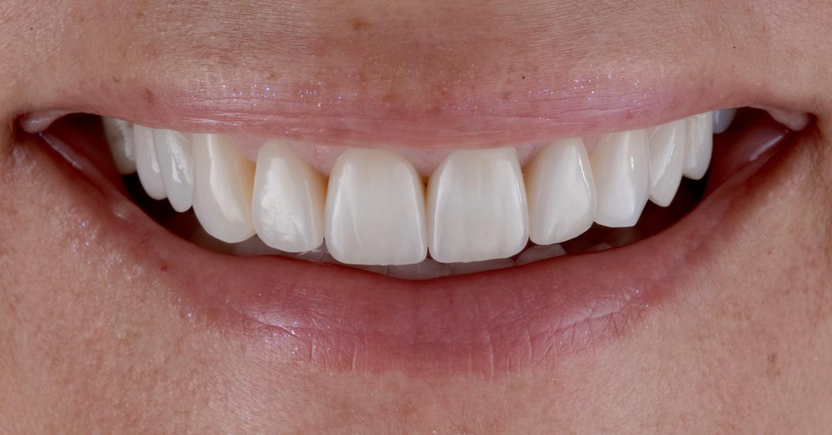 Die Aufgabe lautete: die Attraktivität des Lächelns der Patientin so zu verbessern, dass diese hundertprozentig zufrieden sein würde.
