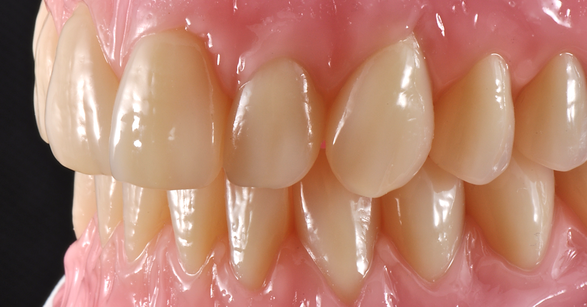 Popular post - Total dentures with great esthetics