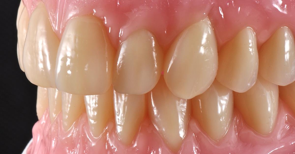 Total dentures with great esthetics