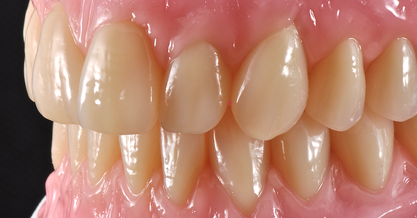 Featured image - Total dentures with great esthetics