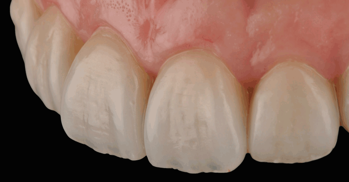 Popular post - Integrating discolourations: Case presentation by Koubi / Ubassy to download