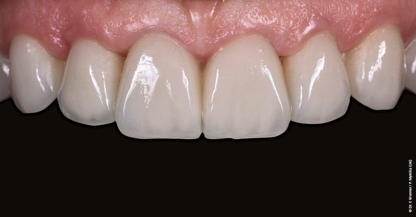 El sistema de cerámica sin metal IPS e.max ofrece una amplia gama de opciones para adaptarse a la complejidad del diente natural