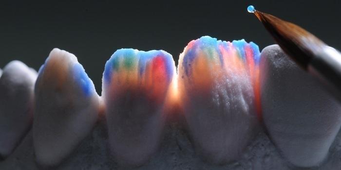 Ceramica dentale: la breve storia di una grande invenzione