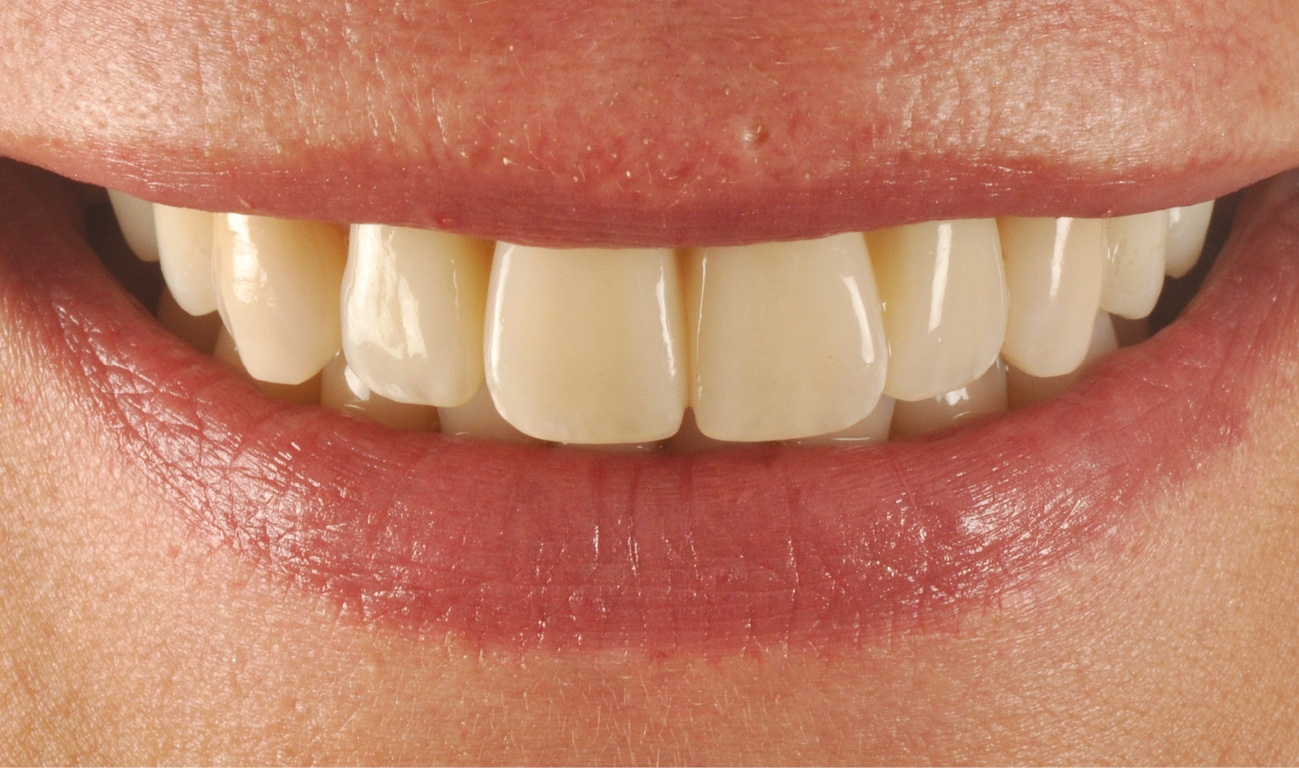 Related post - Guided concept in the esthetic zone