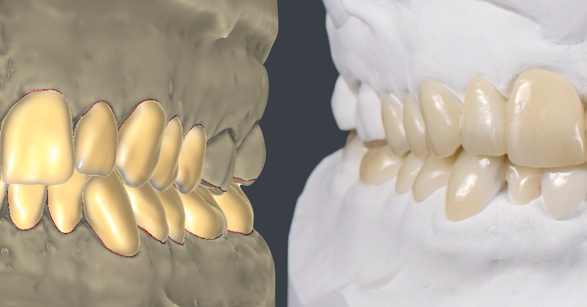 The future of dentistry will be both digital and manual