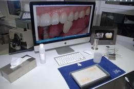 Thomas Furter da mucho valor en su trabajo diario es la determinación del color adecuado del diente. Hace mucho que utiliza sistemas digitales para elegir el color correcto.