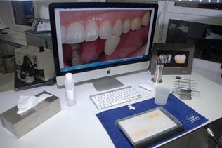 Un sujet qui très cher à Thomas Furter : la détermination précise de la teinte des dents. Dans son cas, cela se fait avec des moyens numériques.