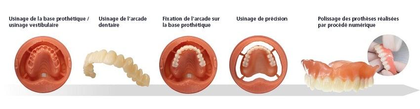 Digital Denture permet aux utilisateurs de gagner du temps par rapport aux méthodes conventionnelles de fabrication de prothèses dentaires.