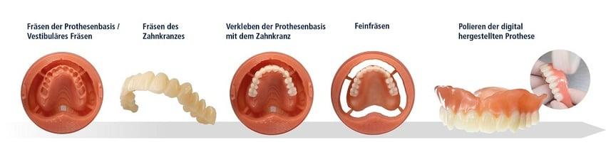 «Digital Denture». Hinter diesem Namen verbirgt sich ein Herstellungsprozess, der die digitale Fertigung im Labor mit den etablierten zahnärztlichen Behandlungsschritten verknüpft.