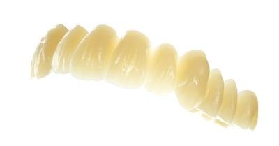 Zahnkranz aus DCL-Material