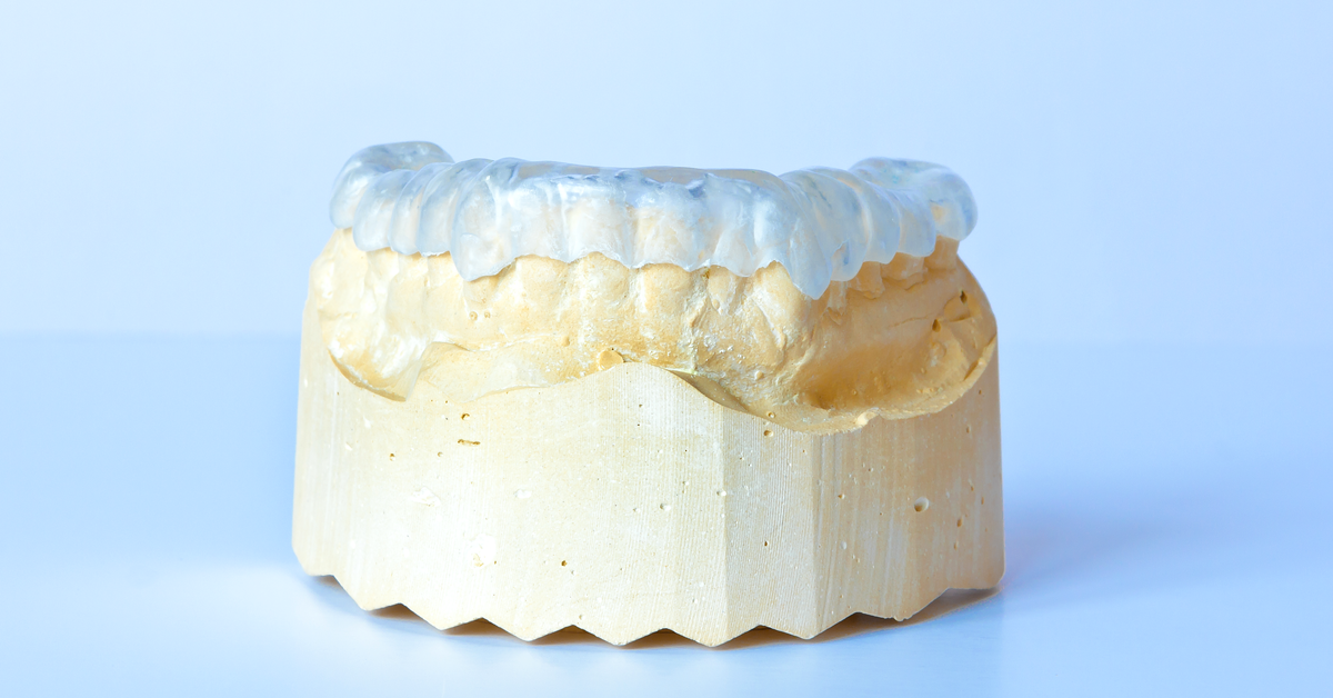 Bruxism: Occlusal splints to prevent bruxism can also be manufactured digitally