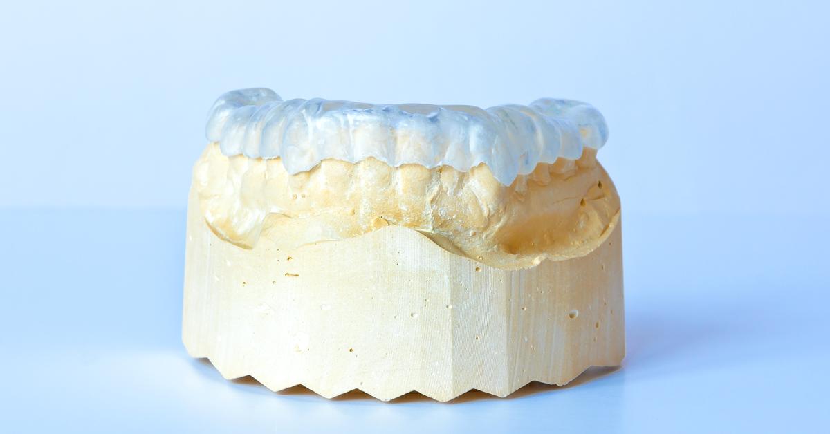 Bruxismo: le placche di svincolo contro il digrignamento dei denti realizzabili anche digitalmente