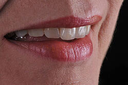 Die geschichteten Veneers ergeben ein harmonisch-natürliches Gesamtbild im Patientenmund.