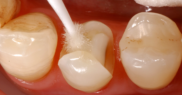Featured image - How do I avoid postoperative complaints?