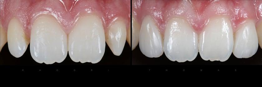 Natürliche Zahnfarbe und intuitive Schichtung