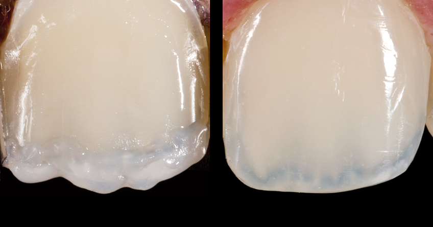 Characterizations and natural-looking features, for example, hypocalcifications or stains can be created with composite systems such as IPS Empress Direct.