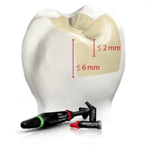 For deeper cavities (up to 8 mm), you can use a 4-mm bulk-fill material: