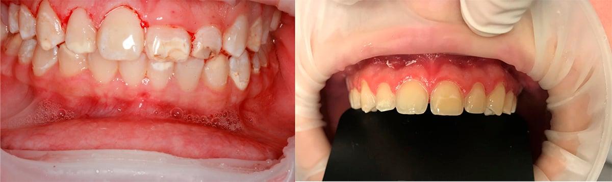 Paciente durante e após a gengivectomia. Para facilitar a realização das fotos foi utilizado o isolamento relativo OptraGate.