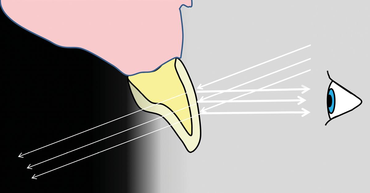 Ein wichtiger Aspekt für eine ästhetisch lebendige Klasse-IV-Restauration ist die treffende Farbwahl für Dentin und Zahnschmelz (Enamel).