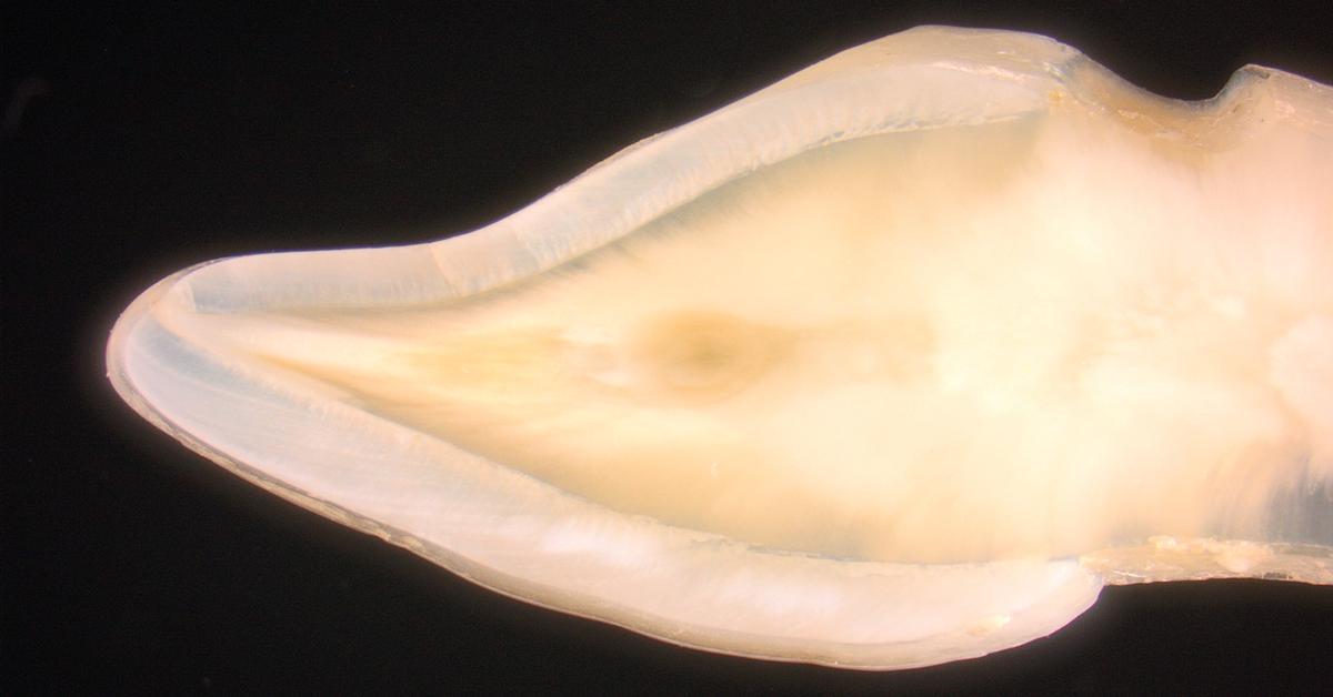 Natürliche Opaleszenz und Transluzenz: So spielen Sie mit Lichtreflexen bei Klasse-IV-Restaurationen