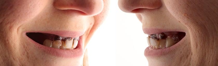 Un gros plan montre clairement l'aspect peu attrayant de ses dents