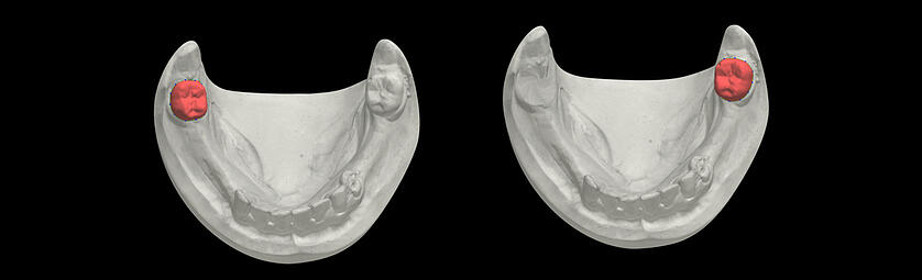 Removal of the teeth with a special virtual tool