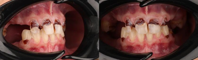 Los pocos dientes remanentes están muy dañados y son insalvables. Andrea tiene miedo a un tratamiento complejo por su historial dental.