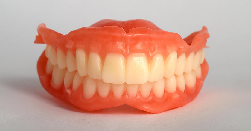 After the CAD/CAM milling process, the interim Digital Denture required only minimal manual finishing.