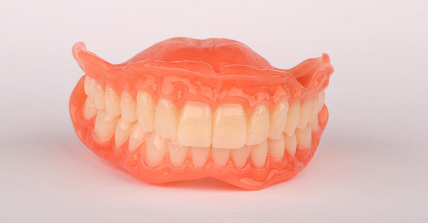 Les prothèses provisoires étaient prêtes pour appareiller la patiente le jour des extractions dentaires