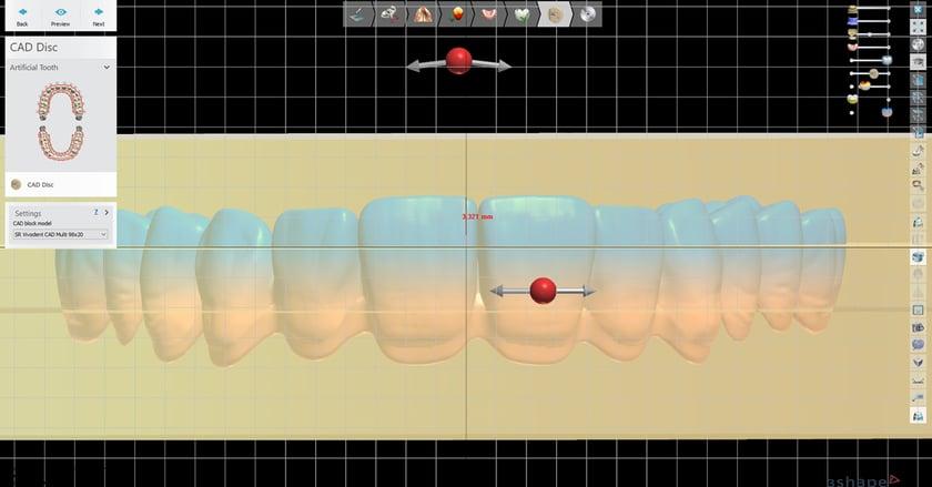 Positionnement personnalisé de l'arcade dentaire dans le disque SR Vivodent CAD Multi.
