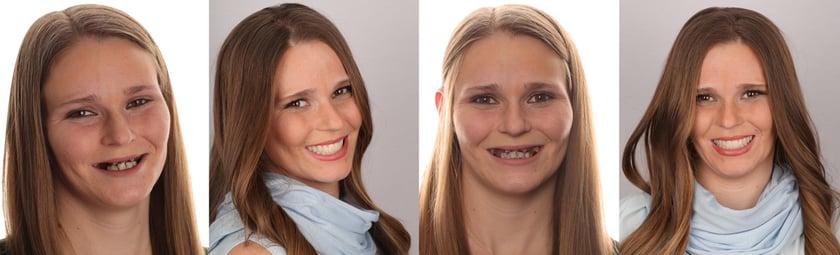 Andrea rayonne de vitalité et de confiance en elle - la situation une semaine après l'extraction de ses dents et la pose des prothèses provisoires réalisées avec Digital Denture.