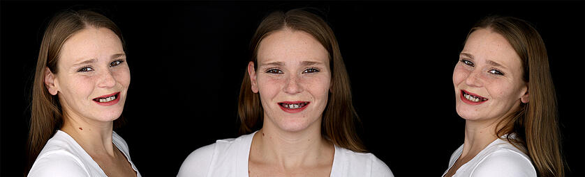 Die wenigen noch vorhandenen Zähne von Andrea sind nicht erhaltungsfähig. Sie hat zwar Angst vor der komplexen Behandlung, doch mit Digital Denture konnte ihr ein Ausweg aufgezeigt werden.