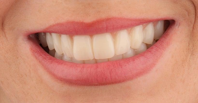 Primer plano de la nueva sonrisa de Andrea una semana después del tratamiento.