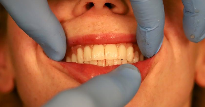 La intervención quirúrgica se hizo con anestesia general. Las prótesis temporales se fabricaron previamente con el sistema Digital Denture, y se colocaron directamente en la boca de la paciente.