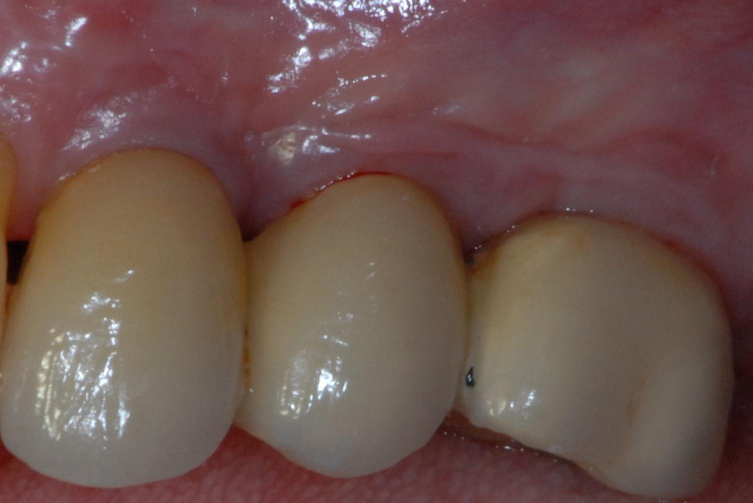 Fig. 1: Periimplant mucositis (Photo: Prof. Dr S. Twetman)