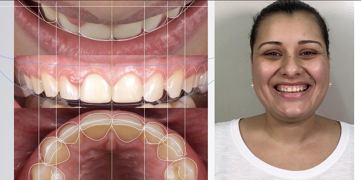 Planejamento DSD determinando a moldura do sorriso ideal para a paciente, definindo novas proporções dentárias compatíveis com o padrão facial da mesma.